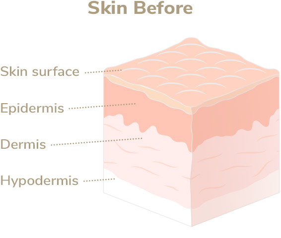 Skin before Elevare