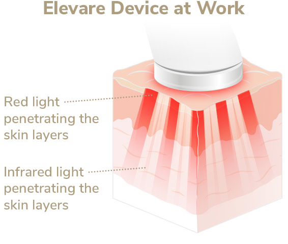 Elevare device at work