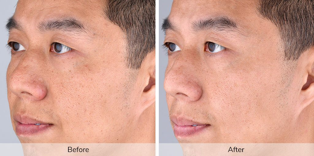 Results After Using Elevare