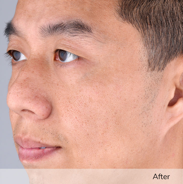 A man's face after using the Elevare Plus + device in a clinical trial