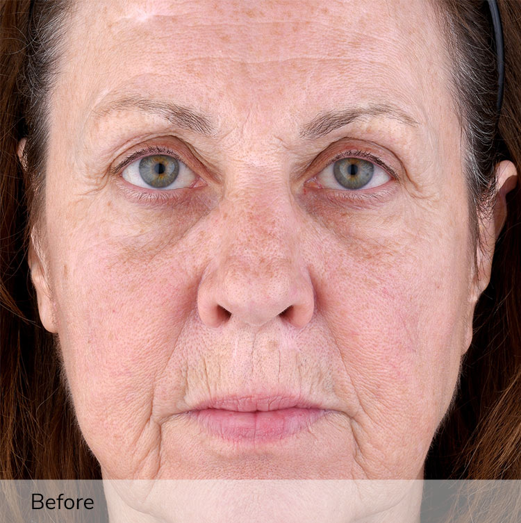 A woman's face before using the Elevare Plus + device in a clinical trial